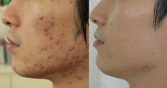 大人ニキビ、敏感肌の原因は肌だけでなく体内にも
